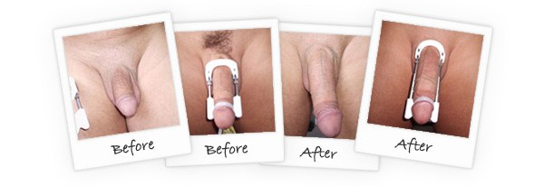 Pro-Extender-before-and-after-results