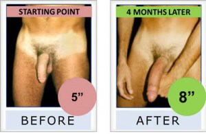 bathmate-before-and-after-hydromax pumps- penis enlargement review