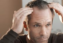 hair-thinning-loss-biotin-vitamin-b7