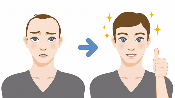 the-benefits-of-hair-transplant